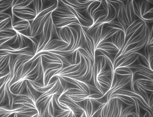 G-actin is a protein involved in muscle contraction. It forms loose bundles that self-organize into regular patterns. The image was captured using total internal reflectance fluorescence (TIRF) microscopy. Dennis Breitsprecher