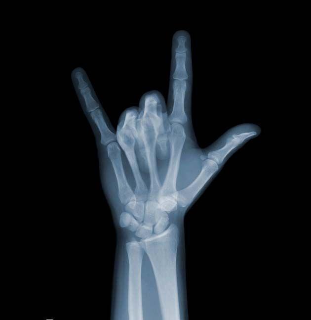 X-ray photos by Nick Veasey ❤Photog [◎°] Xray❤